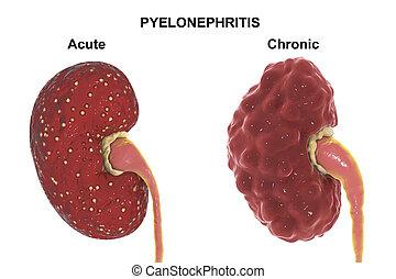 akut, medizinisches konzept, pyelonephritis, chronisch