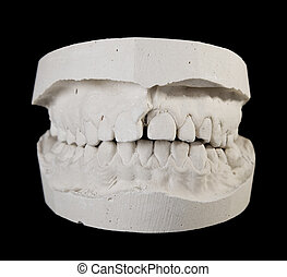alabaster cast jaws man. Dental blank.