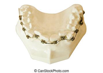 alambre, ortodóntico, dentaduras