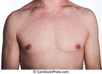 Allergy reaction on skin of man chest