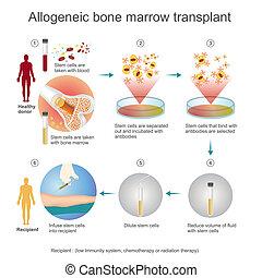 allogeneic, process., transplante