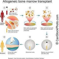 allogeneic, process., trasplante