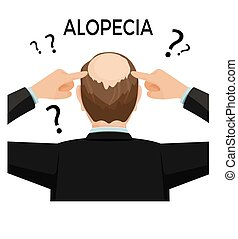 Alopecia concept. Man is showing his hairloss nape. Vector...