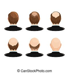 Alopecia concept. Set of heads showing the hairloss...