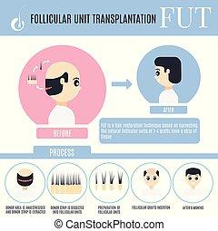 alopecia, follicular, áttelepítés, bánásmód, infographics,...