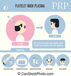 alopecia, platelet-rich, bánásmód, infographics, hím,...