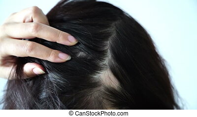 alopecia women hair loss woman found high temple on back of the head by the hands touching