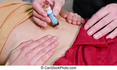 Alternative therapist applying moxibustion a traditional chinese medicine method .