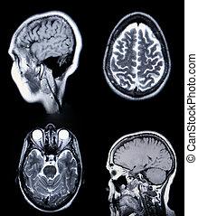 alto, resolución, mri/, mra, (magnetic, resonancia, angiogram), de, el, cerebro, vasculature, (arteries), crt, monitor, grano, visible