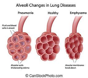 alvéolos, em, pulmão, doenças