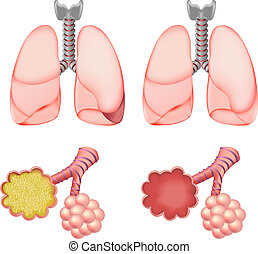 alvéolos, jogo, pulmões
