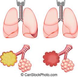 alveoli, sätta, lungan