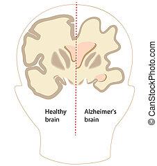 alzheimer, 腦子, 疾病, eps8