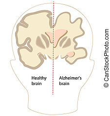Alzheimer's disease brain compared to normal, eps8
