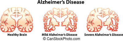 Alzheimer's Disease - Illustration of the alzheimer's...