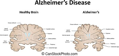 Alzheimer's Disease of the Brain and Motor System