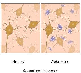 alzheimer's, hjerne, væv, w, amyloid