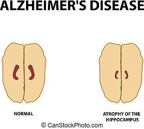 alzheimer's, isolerat, illustration, hippocampus., atrofi, ...