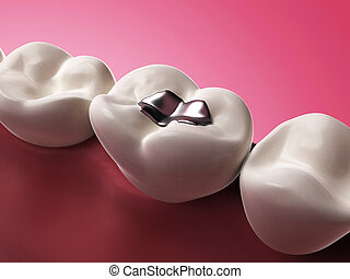 3d rendered illustration of an amalgam filling