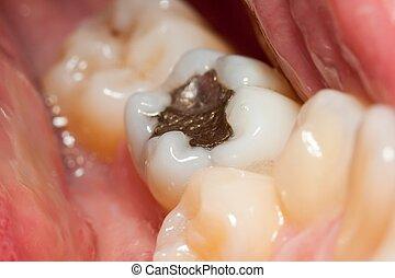 Amalgam filling - Macro of a tooth with amalgam filling