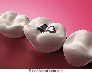 Amalgam filling - 3d rendered illustration of an amalgam...