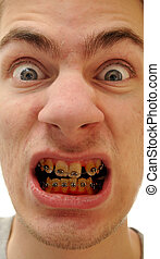amarillo, dientes