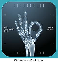 ambos, aprobar, símbolo, -, mano, humano, radiografía