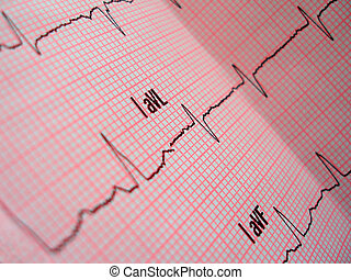heart analysis scheme - An ECG heart analysis scheme with...