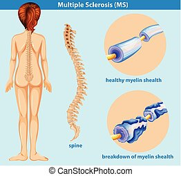 An Education Poster of Sclerosis