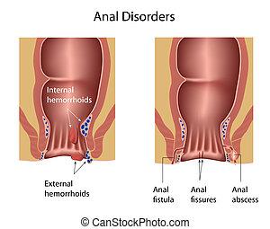 hemorrhoids, anal fissures, abscess and fistula