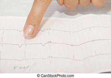 analysieren, elektrokardiogramm, doktor