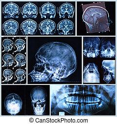 anatomía, cabeza, cuello