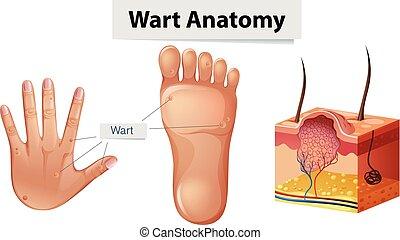 anatomía, pie, verruga, mano humana