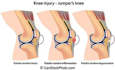 anatomía, rodilla, jumper's