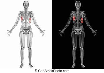 anatomía, roto, costillas, -, humano