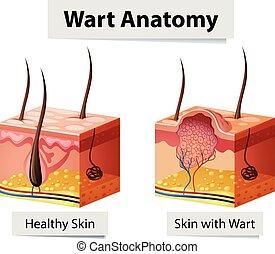 anatomía, verruga, humano, ilustración, piel