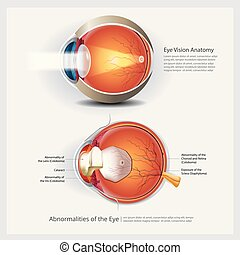 anatomia, abnormalities, vetorial, olho, ilustração