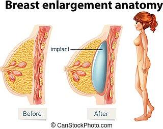 anatomia, implante, peito, human