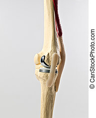 knee replacement - anatomic study tool of an human knee...