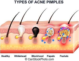 anatomie, acné, composition, peau