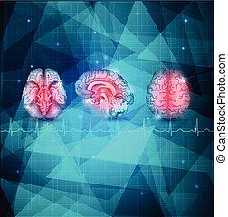anatomie, cerveau humain, détaillé