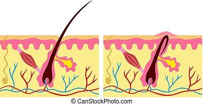 anatomie, cheveux, humain, illustration, peau