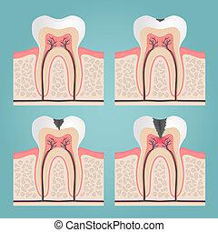 anatomie, dent