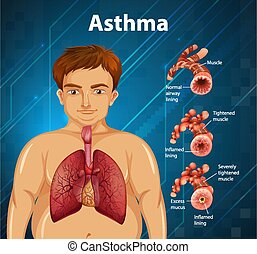anatomie humaine, asthme, diagramme
