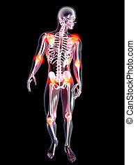 anatomie, joints, -, douloureux