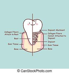 anatomie, mignon, implant, dessin animé, dent