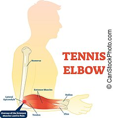 anatomie, muscles., tennis, illustration, os, diagramme, ...