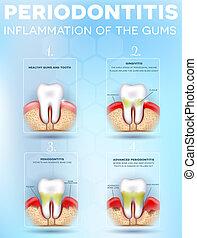 anatomie, periodontitis, dentaire
