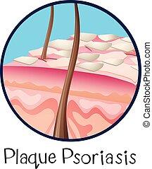 anatomie, psoriasis, humain, plaque