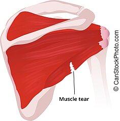 anatomie, tear., poignet rotateur, illustration, muscle